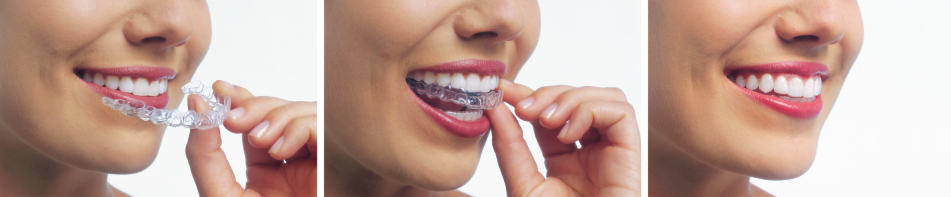 invisalign putting it in mouth