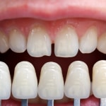 improve your smile with veneers