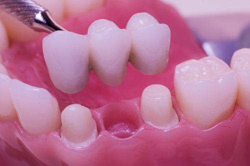 Dental bridges how it works